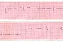 Cardiograma. Esquema del análisis del corazón Imagen de archivo