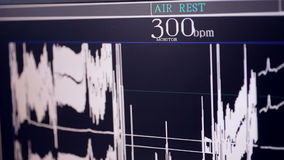 Cardiograma real Cardiógrafo de trabajo en un hospital de la cardiología almacen de video