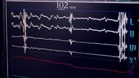 Cardiograma real Cardiógrafo de trabajo en un hospital de la cardiología metrajes