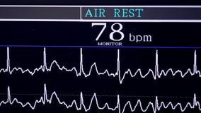 Cardiograma real Cardiógrafo de trabajo en un hospital de la cardiología almacen de metraje de vídeo