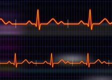 cardiogramillustration Royaltyfri Bild