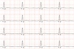 Cardiogramma del battito cardiaco ECG sulla carta millimetrata Illustrazione di vettore Immagini Stock Libere da Diritti