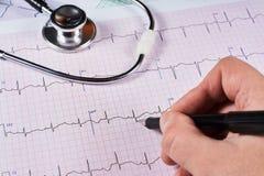 Cardiogramma del cuore fotografia stock libera da diritti