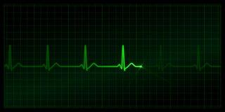 Cardiogramme Photo stock
