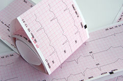 Cardiogramme Image stock