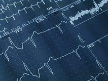 Cardiogramme Photographie stock