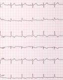 Cardiogramme de battements de coeur Photographie stock libre de droits
