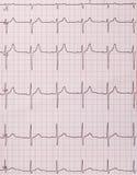 Cardiogramme de battements de coeur Images libres de droits