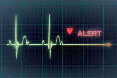 Cardiogramme de battements de coeur sur le moniteur photographie stock