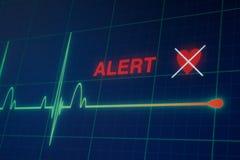 Cardiogramme de battements de coeur sur le moniteur image stock