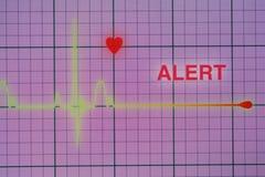 Cardiogramme de battements de coeur sur le moniteur photos libres de droits