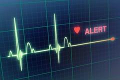 Cardiogramme de battements de coeur sur le moniteur photographie stock libre de droits