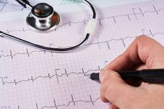 Cardiogramme du coeur photo libre de droits