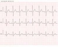 Cardiogramme Photos libres de droits