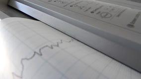 Cardiograph καθορίζοντας και τυπώνοντας γραφικές παραστάσεις του ποσοστού καρδιών φιλμ μικρού μήκους