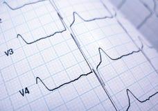 cardiograph Royaltyfria Foton