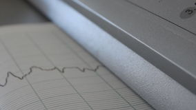 Cardiograph printing graphs of heart rate closeup stock video footage