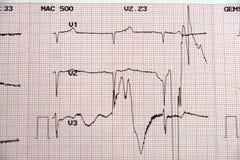 Cardiologia Fotografie Stock