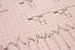 Cardiological test results Royalty Free Stock Photography