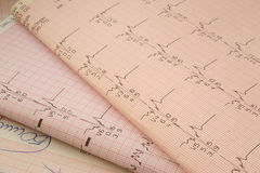 Cardiological test results #2 royalty free stock images