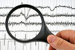 Cardiological undersökning studerade med ett förstoringsglas vektor illustrationer