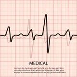 Cardiologieconcept met polsslagdiagram Medische achtergrond met hartcardiogram Royalty-vrije Stock Foto's