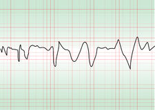 Cardiology test Royalty Free Stock Image
