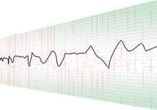 Cardiology test perspective Stock Image