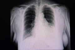 cardiomegaly και αριστερά πλευρική διάχυση στοκ εικόνες