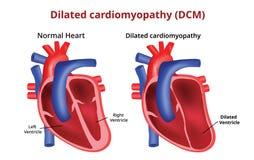 Cardiomiopatia dilatada, doença cardíaca, imagem do vetor ilustração do vetor
