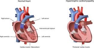 Cardiomyopathie hypertrophique de problème de coeur Photo libre de droits