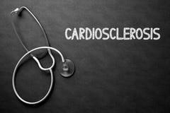 Cardiosclerosis Met de hand geschreven op Bord 3D Illustratie Stock Fotografie