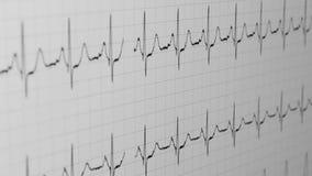 Heart rhythm, сardiovascular diagram closeup, medical pulse, stock video