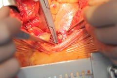 Cardiovascular operation macro. Cardiovascular surgery on the aorta macro Stock Photos