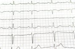 Cardoigram της νέας υγιούς γυναίκας ECG στοκ φωτογραφία με δικαίωμα ελεύθερης χρήσης