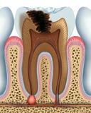 Carie del diente stock de ilustración