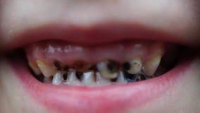 Carie del metraggio sui denti del bambino archivi video