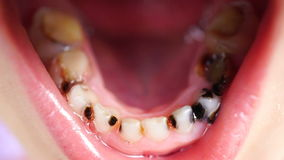 Carie del metraggio sui denti della fine del bambino su video d archivio