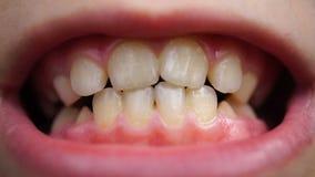 Carie del metraggio sui denti della fine del bambino su stock footage