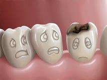 Carie dental ilustración del vector