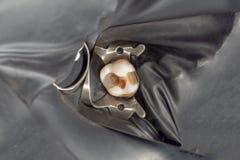 Carie dentale Riempiendo di materi composito dentario del photopolymer fotografia stock