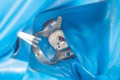 Carie dentale Riempiendo di materi composito dentario del photopolymer fotografia stock libera da diritti