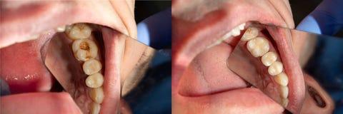 Carie dentale Riempiendo di materiale composito dentario del photopolymer facendo uso dei rabbders Concetto del trattamento denta immagine stock