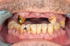 Carie dentale Riempiendo di materiale composito dentario del photopolymer facendo uso dei rabbders Il concetto del trattamento de fotografie stock