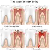 Carie dentaria, eps8 Fotografie Stock Libere da Diritti