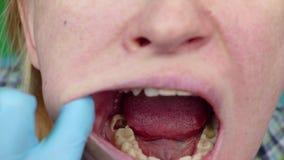 Carie profunda, canales abiertos, canales de limpieza Paciente en el stomatolon en la admisión, tratamiento del periodontitis almacen de video