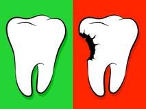Carie saine et malsaine de dessin animé de dent Photo libre de droits
