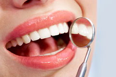 Caries Royalty Free Stock Photo