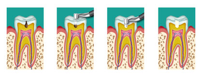 Caries. Dental caries dentistry intervention with drill four steps Royalty Free Stock Photos