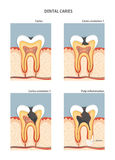 Caries. Development of dental caries. Vector illustration Stock Photo